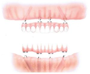 Dental Implants in Fontana | Smile in One Day Diagram