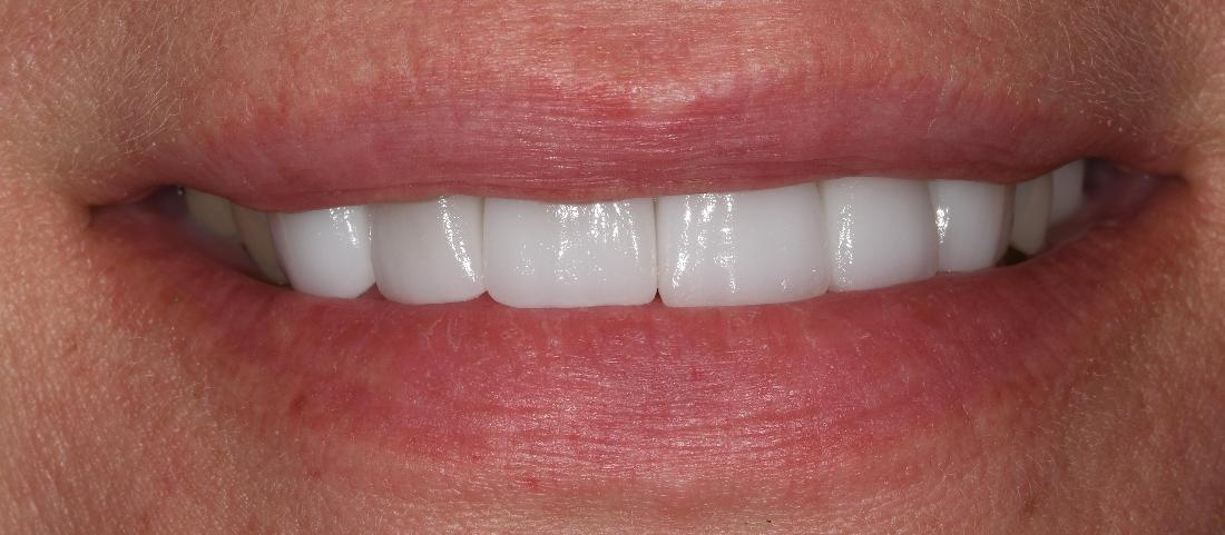 Cosmetic Dental Crowns in Fontana | Before