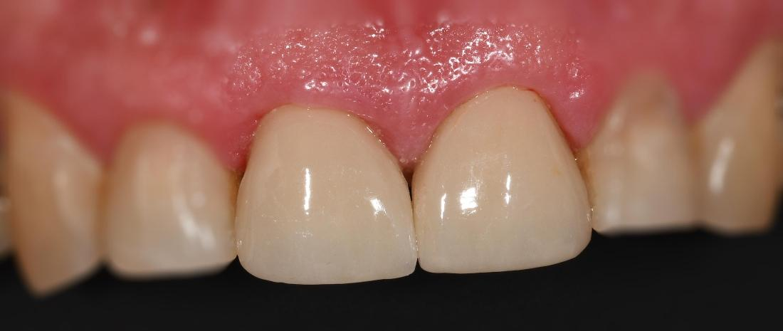 Cosmetic Crowns for worn front two teeth.