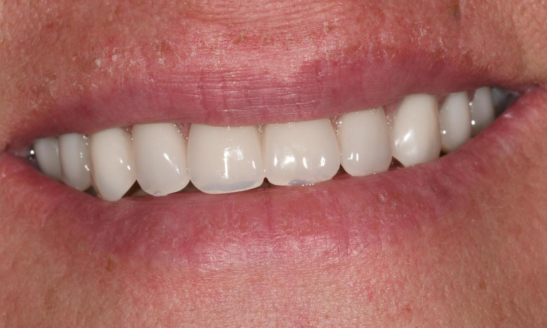Full Mouth Rehab in Fontana | After