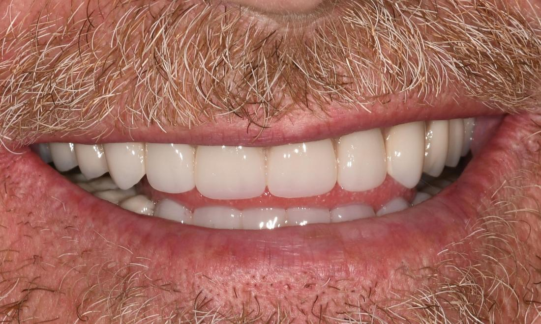 Tooth Replacement in Fontana | After