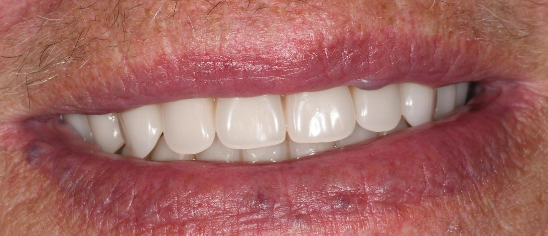 Dental Implants in Fontana | After