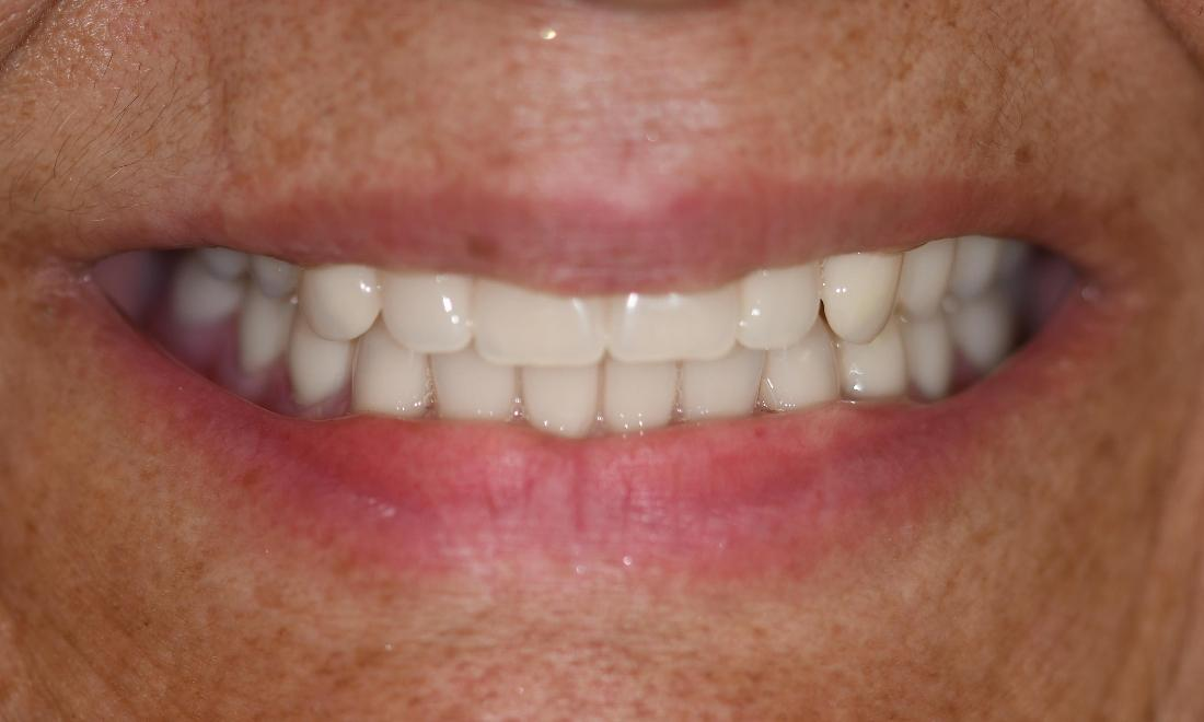 Dentures in Fontana | AFter
