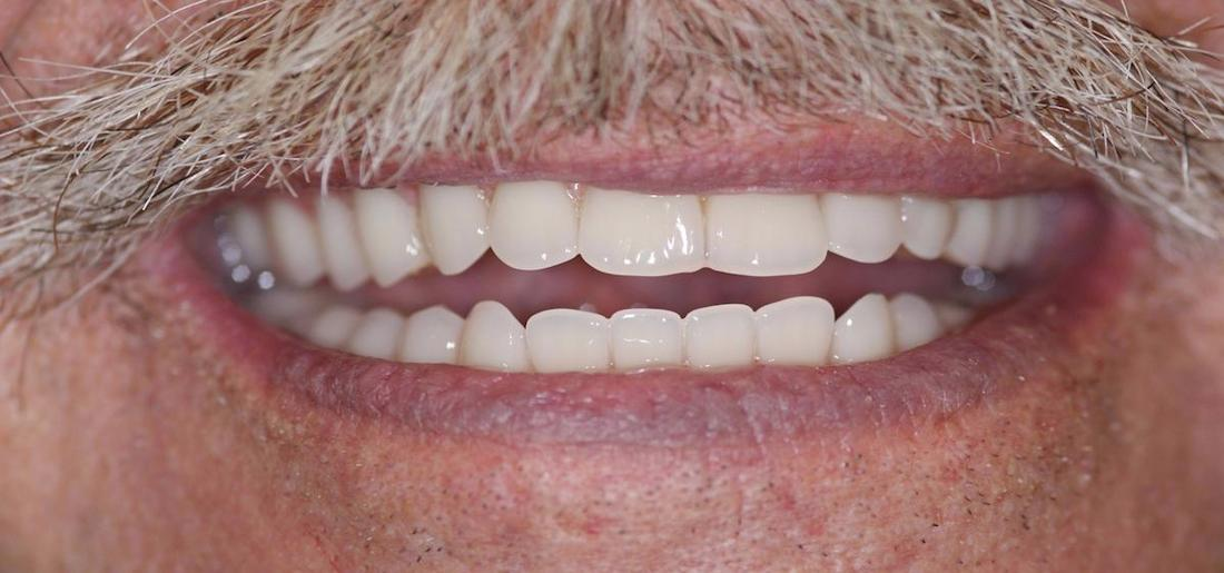 Modern Dentures in Fontana | After