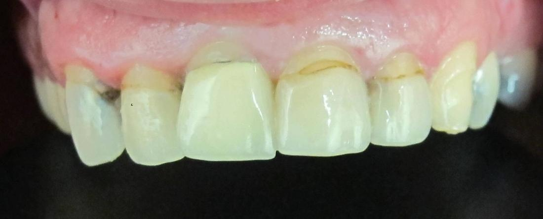Cosmetic Crowns in Fontana | Before