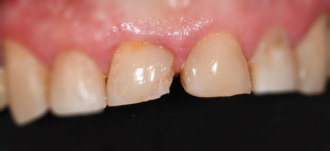 Dental Crowns in Fontana | Before