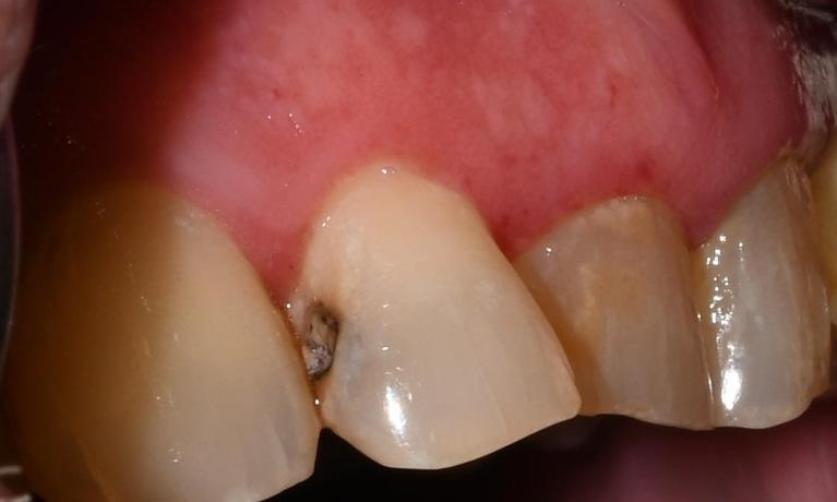 Tooth Restorations in Fontana | Before