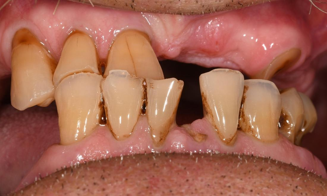 Full Mouth Rehab in Fontana | Before