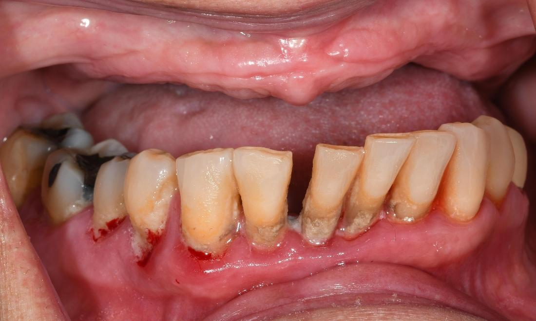 Dentures in Fontana | Before