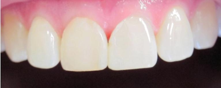 Diastema-Closure-After-Image