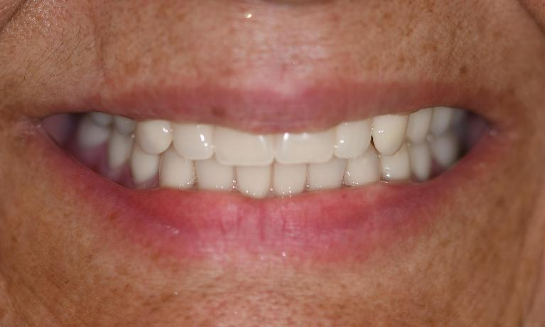 Premier-Dentures-After-Image