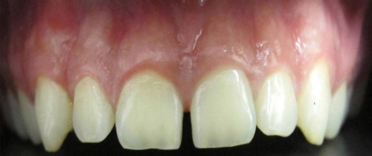 Diastema-Closure-Before-Image