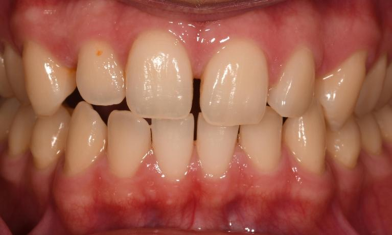 Six-Month-Smiles-Cosmetic-Braces-Before-Image